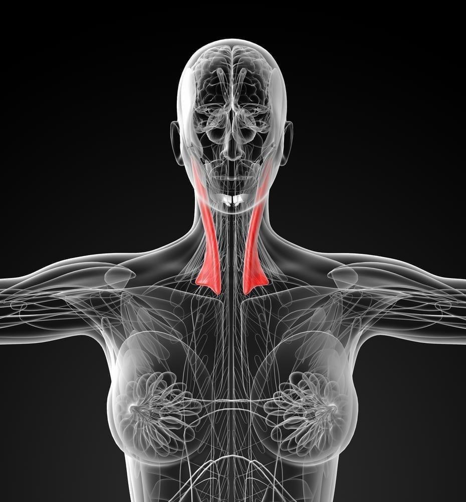 torticollis anatomy
